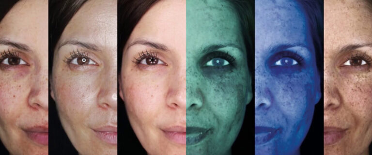 percorso skincare: fotografie della pelle